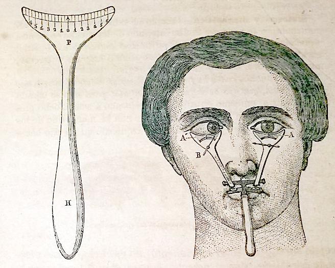 Ilustración de un estrabómetro y un examen a paciente.